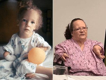 Thalidomide Baby born in the U.S.